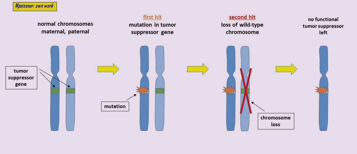Knudson Hypothesis Tumor Suppressor Gene