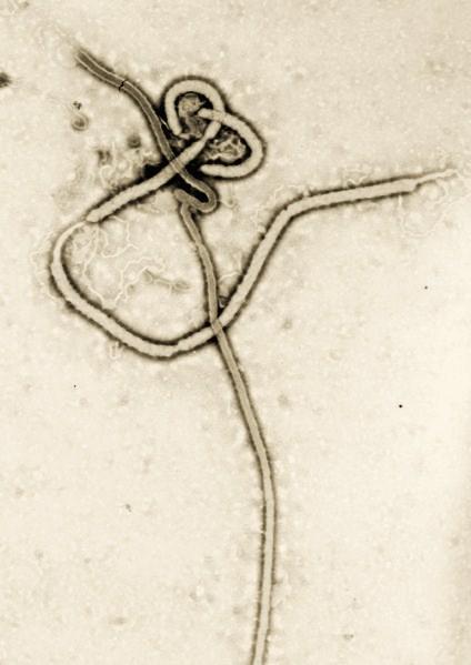Ebola_virus_em