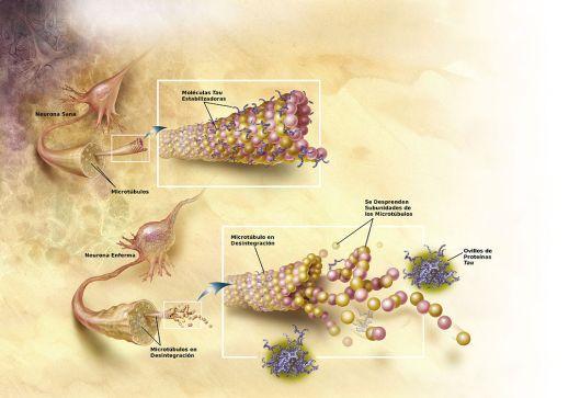 microtubulos AE