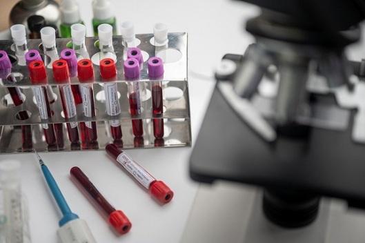 vacuna bioquimica OK